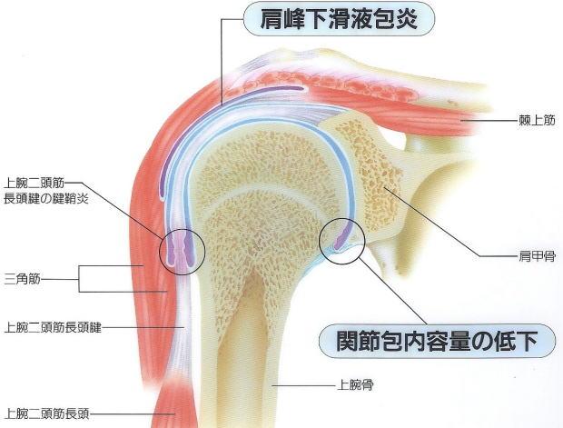 肩関節周囲炎/いわゆる五十肩