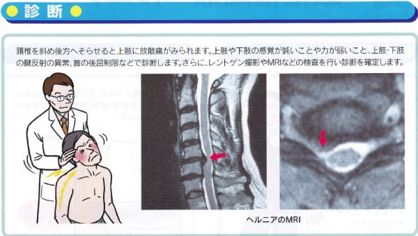 頚 椎間板 ヘルニア