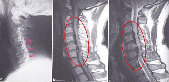 骨 症 化 靭帯 縦 後